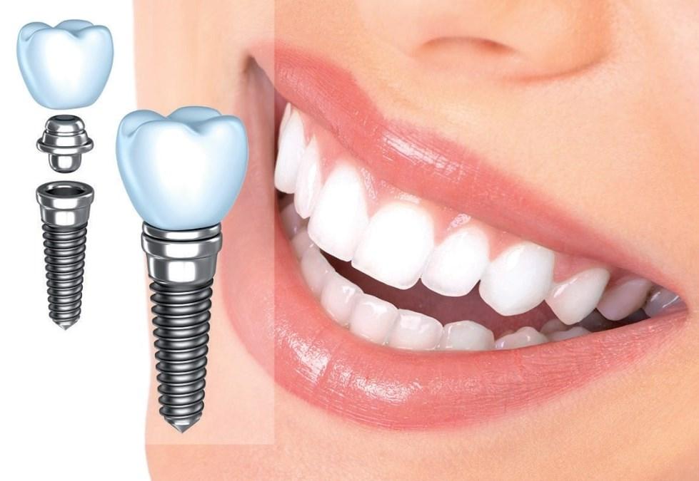 Благодаря протоколу всё-на-4 ваши челюсти будут перекусывать стальную проволоку